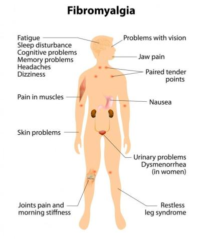 symptoms-of-fibromyalgia