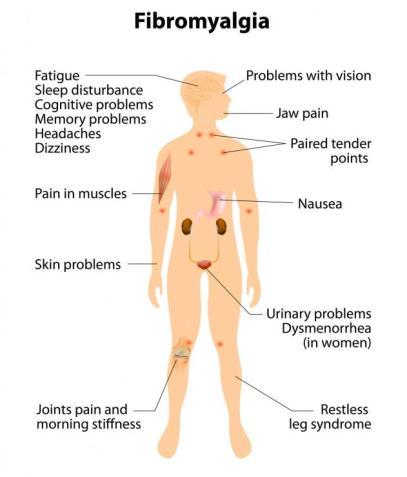 symptoms-of-fibromyalgia